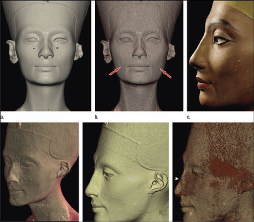 ** PHOTO HAS BEEN ANNOTATED BY SOURCE ** In this undated photo composite released Tuesday, March 31, 2009 by the Radiological Society of North America, the bust of Nefertiti is shown. Researchers in Germany have used a modern medical procedure to uncover a secret within one of ancient Egypt's most treasured artworks _ the bust of Nefertiti has two faces. The differences between the faces, though slight _ creases at the corners of the mouth, a bump on the nose of the stone version _ suggest to Dr. Alexander Huppertz, director of the Imaging Science Institute at Berlin's Charite hospital and medical school, that someone expressly ordered the adjustments between stone and stucco when royal sculptors immortalized the wife of Pharaoh Akhenaten 3,300 years ago. (AP Photo/Radiological Society of North America) ** NO SALES **