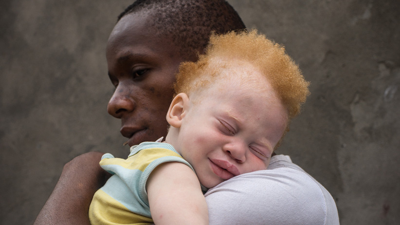 09 Jul 2013, Kinshasa, Democratic Republic of the Congo --- Democratic Republic of Congo (DRC), Kinshasa, black father holding his albino todler (Shango Okaka) in his smiling albino toddler in his arms against a grey wall, Kinshasa, (MR) Patricia Willocq/Art in All of Us/Corbis