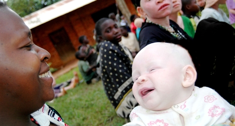 Agnes Anthony plays with her six month old baby Pokea. What started originally as an institution for disabled and visually impaired children, is now also a safe haven for albino infants and their mothers. The school lacks capacity to offer the adults vocational training.