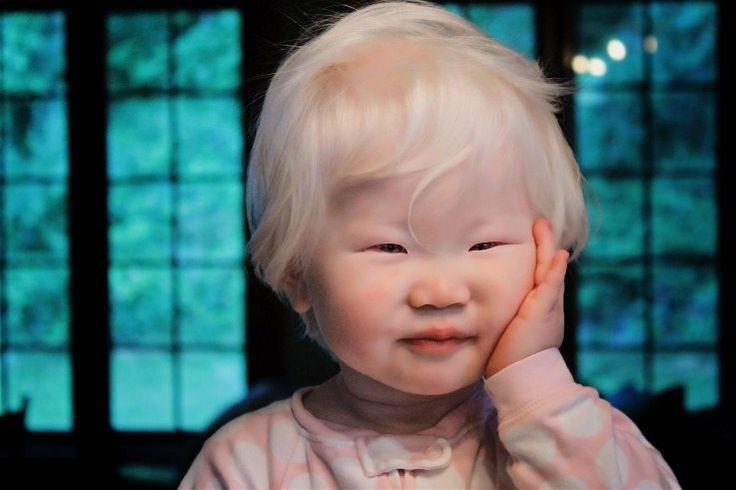 Albinism asia 0