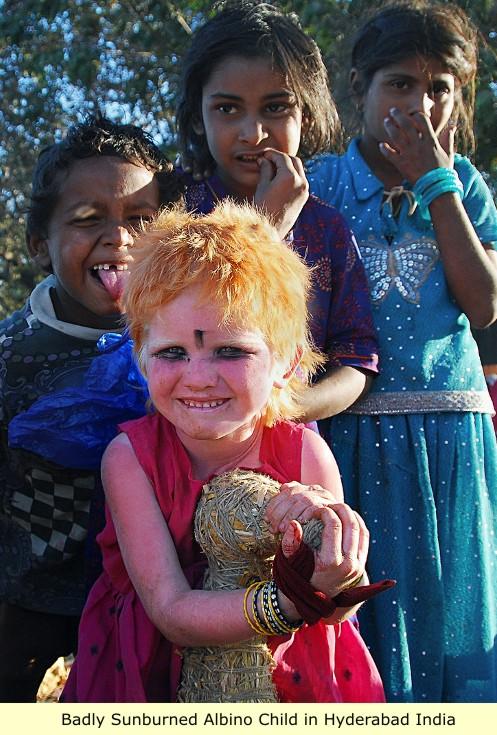 albinisim 0