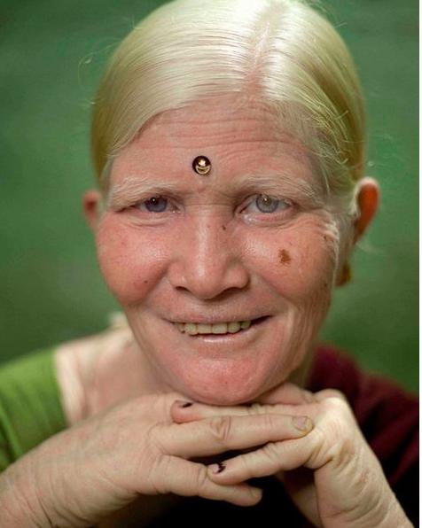albinisim 00