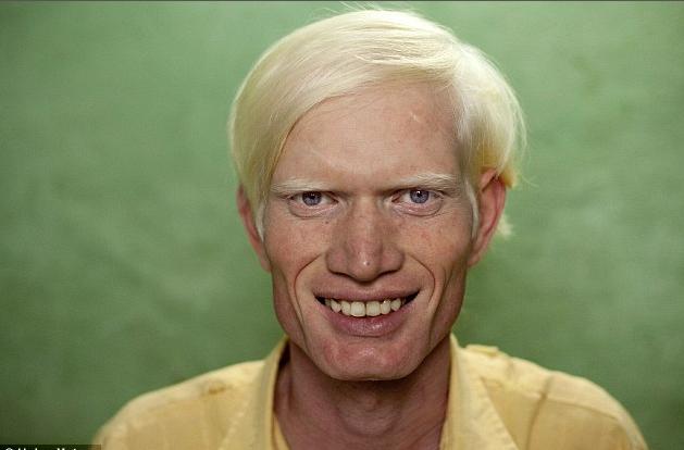albinisim 01