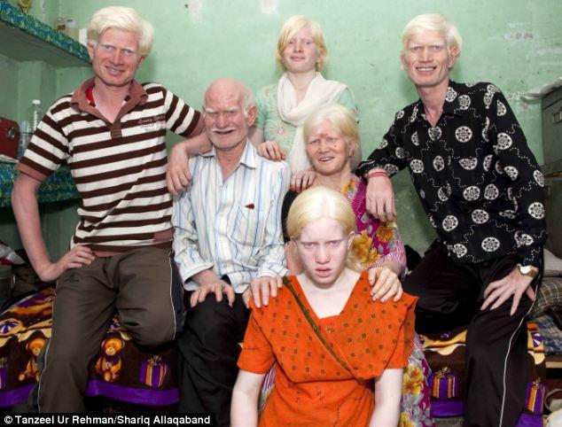 albinisim 02