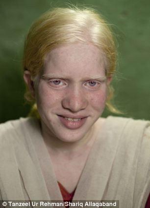 albinisim 03