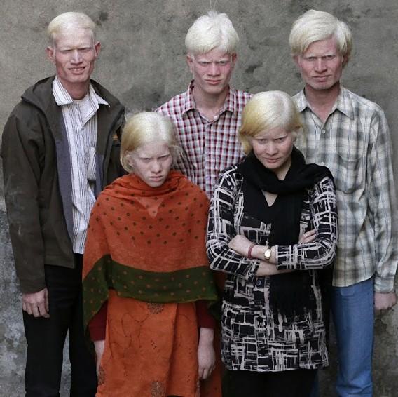 albinisim 05