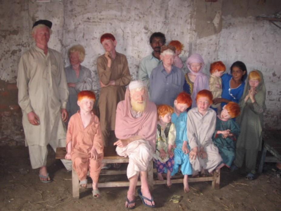 albinisim 06