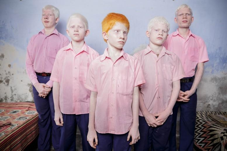 albinisim 07
