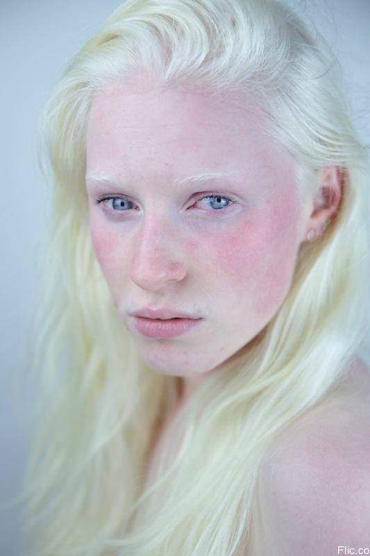 albinisim 08
