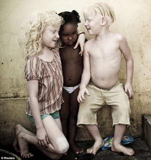 albinisim 11