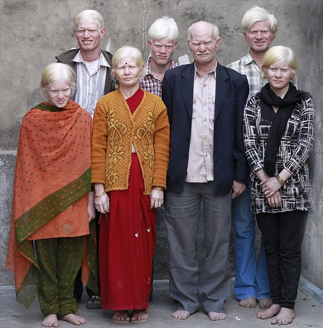 Albinism around the world