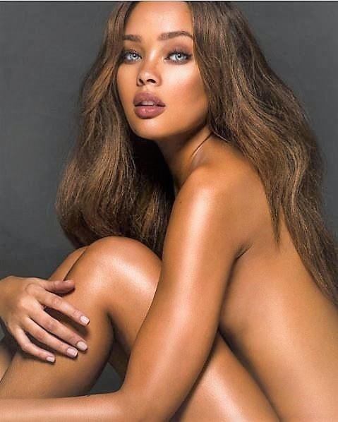 Estrogen gives females softer skin?