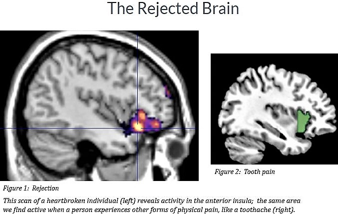 The feeling of rejection in the brain