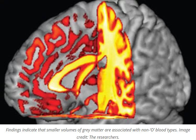 People with an 'O' blood type have more grey matter in their brain?